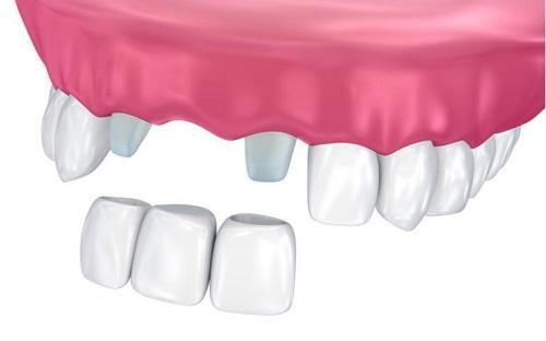 zobni mostiček cena