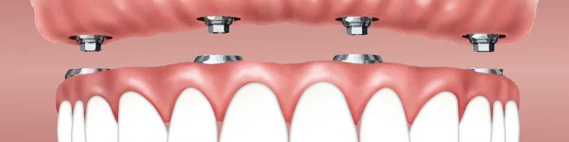 zobni-mosticek-cena